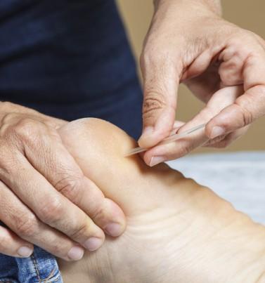 טיפול בדורבן, כאבים בכף הרגל